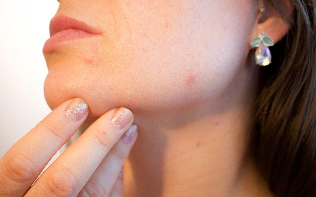 Un test de sensibilité alimentaire peut-il aider mon acné ?